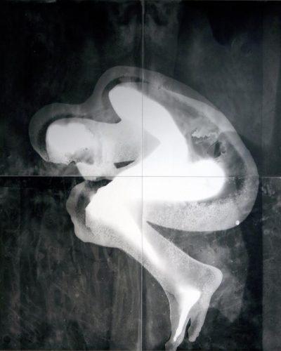 Brice-foetus